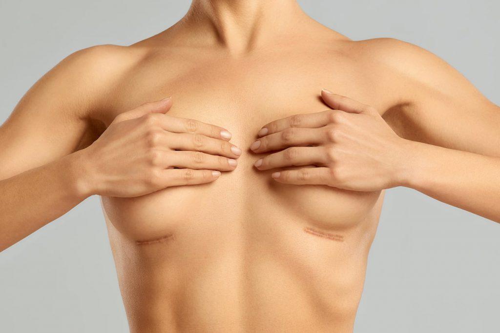 kobieta zakrywająca piersi